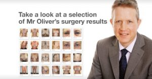 Take a look at Mr David Oliver's before & after surgery results