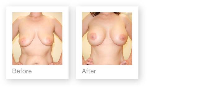 David Oliver before & after results of breast augmentation Feb 2014