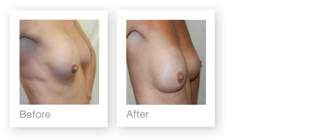David Oliver, Surgeon, Channel Island, before and after breast implant exchange