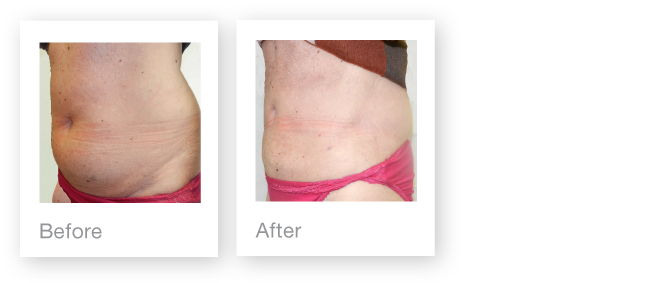David Oliver Plastic Surgeon - Abdominoplasty before & after photos - September 2013