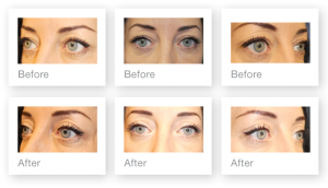 David Oliver Blepharoplasty surgery before & after May b