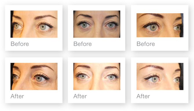 David Oliver Blepharoplasty surgery before & after May