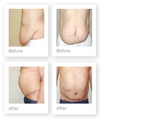David Oliver abdominoplasty weight loss surgery before & after results January 2016