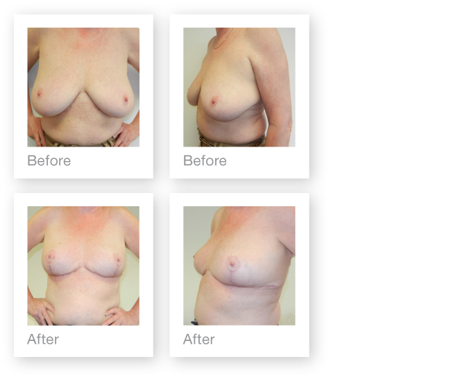 David Oliver Breast Reduction Surgery before & after