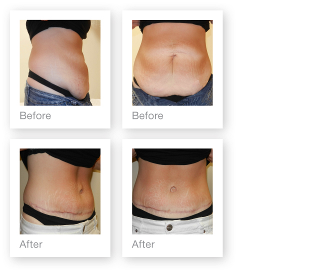 David Oliver abdominoplasty before & after surgery result June 2013