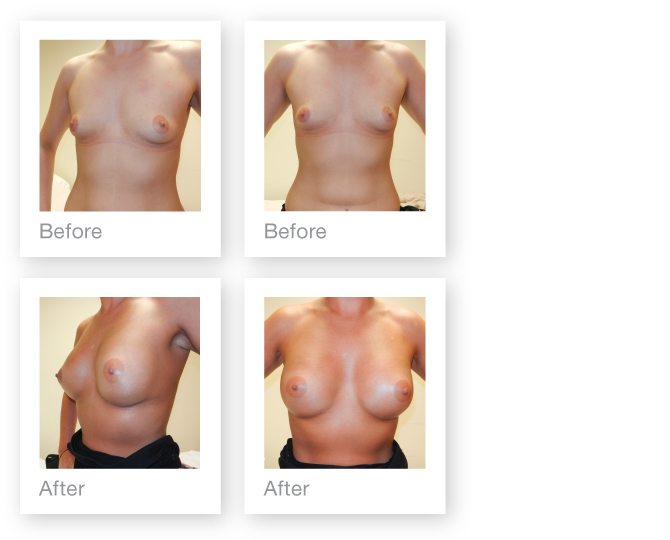 David Oliver Breast Augmentation before & after result