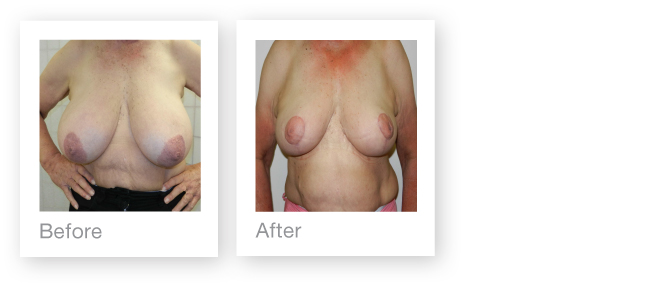 Breast Reduction by David Oliver Cosmetic Surgeon in Devon before & after procedure