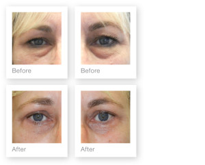 Upper and lower blepharoplasty (eyelid surgery) by David Oliver, cosmetic surgeon in May 2013