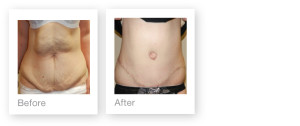 Abdominioplasty (Tummy Tuck) before and after surgery result by David Oliver, cosmetic surgeon in May 2013