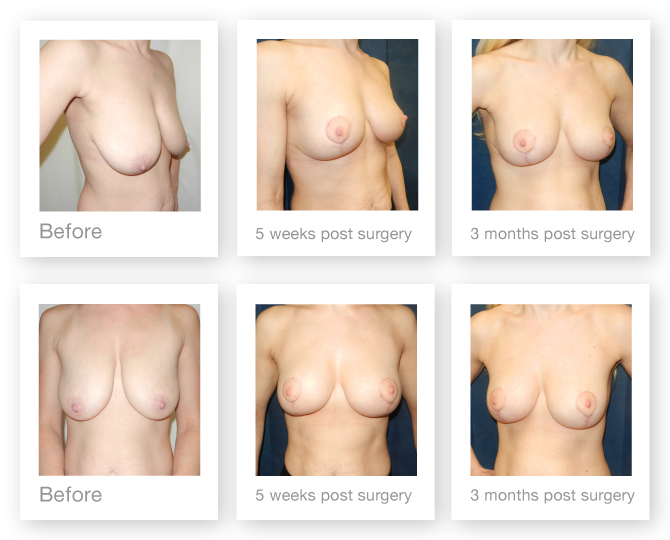 David Oliver before after surgery Breast Mastopexy uplift 5 weeks & 3 months post surgery