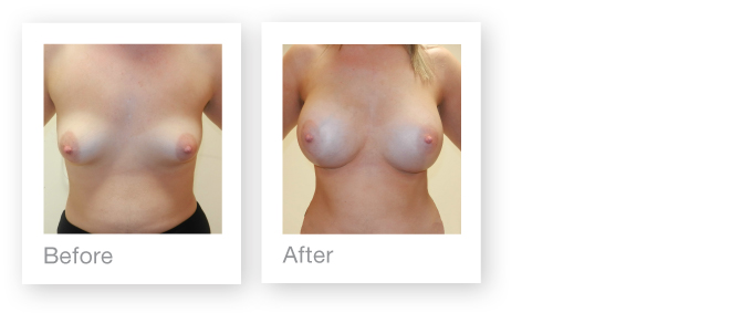 Breast augmentation in Torquay by cosmetic surgeon David Oliver - before & after
