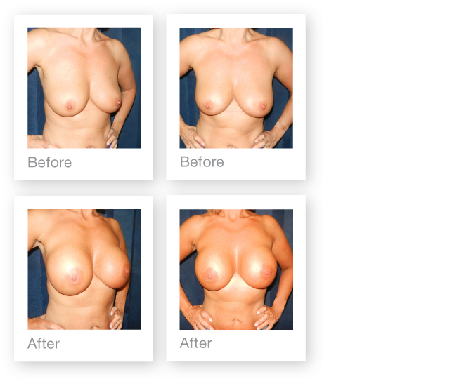 David-Oliver-breast-augmentation-surgery-before-&-after-Sept-2015