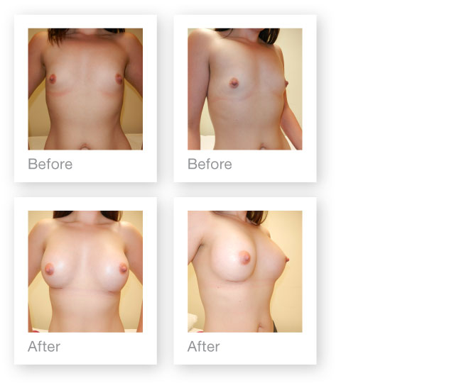 David Oliver Surgeon, Devon patient breast augmentation surgery result