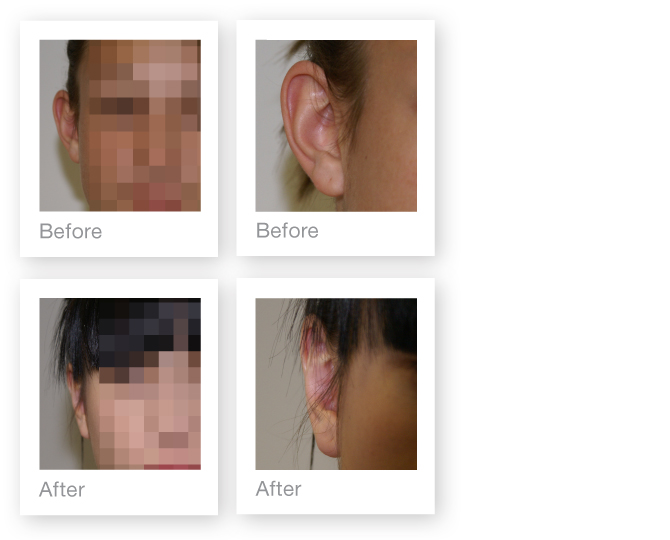 Otoplasty Ear surgery by David Oliver, plastic surgeon before & after results