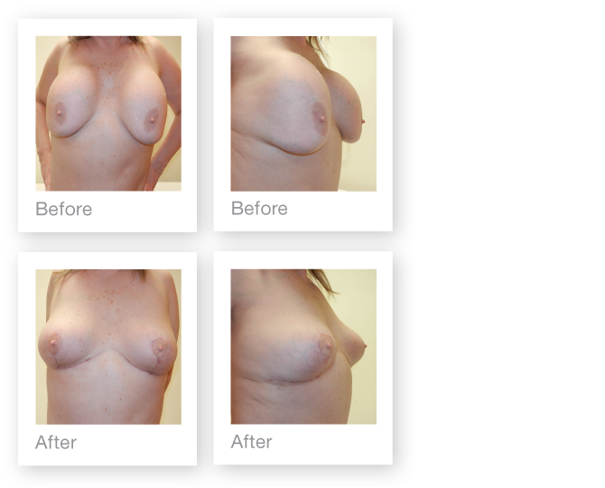 PIP implant removal & mastopexy by Cosmetic Surgeon David Oliver, Devon