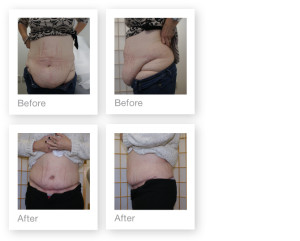 Abdominoplasty (tummy tuck) by David Oliver, plastic surgeon before and after results 2