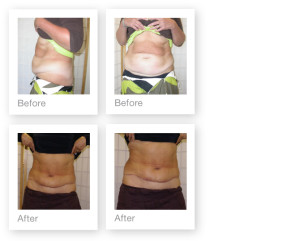 Abdominoplasty (tummy tuck) by David Oliver, plastic surgeon before & after results 2