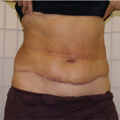 abdominoplasty-2-thumbnail by David Oliver, Cosmetic Surgeon