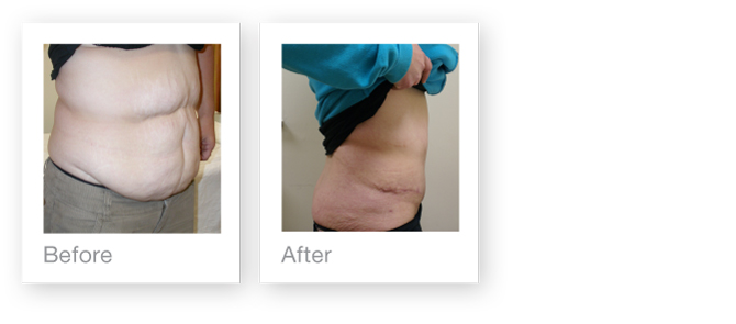 Abdominoplasty (tummy tuck) by David Oliver, cosmetic surgeon before & after results 3