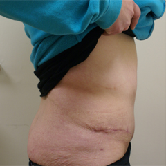 abdominoplasty-3-thumbnail by David Oliver, Cosmetic Surgeon