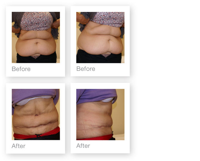 Abdominoplasty surgery before and after by David-Oliver, Surgeon Devon