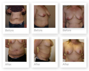 Breast Augmentation & adominoplasty (tummy tuck) by David Oliver, cosmetic surgeon before & after results 3