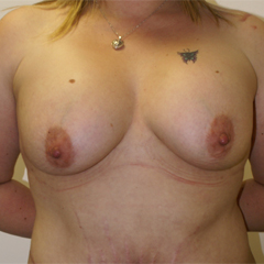 breast-augmentation-abdominoplasty-surgery-thumbnail by David Oliver, Cosmetic Surgeon