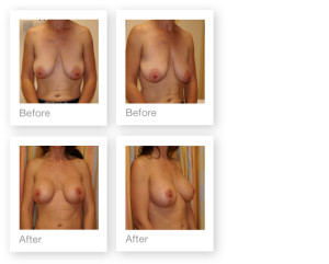 Breast Augmentation & Mastopexy by David Oliver, plastic surgeon before & after results 1