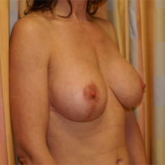 breast-augmentation-mastopexy-1-thumbnail by David Oliver, Cosmetic Surgeon