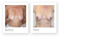 Breast Augmentation & Mastopexy by David Oliver, plastic surgeon before & after results 2