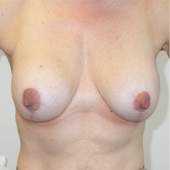 breast-augmentation-mastopexy-2-thumbnail by David Oliver, Cosmetic Surgeon