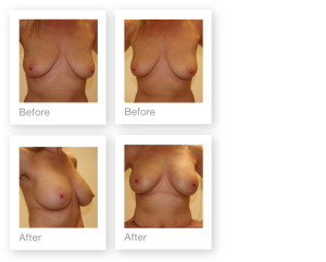 Breast Augmentation & Mastopexy by David Oliver, plastic surgeon before & after results 3