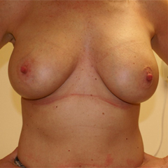 breast-augmentation-mastopexy-3-thumbnail by David Oliver, Cosmetic Surgeon