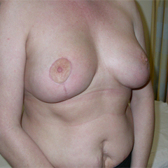 abdominoplasty-1-thumbnail by David Oliver, Cosmetic Surgeon
