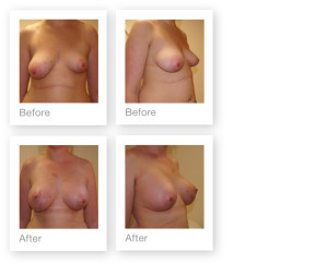 Breast Augmentation & Mastopexy by David Oliver, cosmetic surgeon before & after results 5