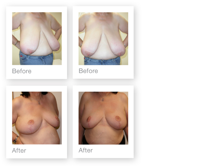 Breast Reduction by David Oliver, cosmetic surgeon before & after results 6