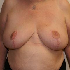 breast-augmentation-mastopexy-6-thumbnail by David Oliver, Cosmetic Surgeon