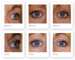 Eyelid (blepharoplasty) surgery by David Oliver, cosmetic surgeon before & after results