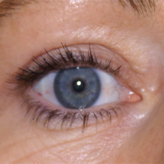 eyelid-surgery-thumbnail by David Oliver, Cosmetic Surgeon