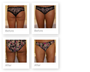 Liposuction by David Oliver, cosmetic surgeon before & after results