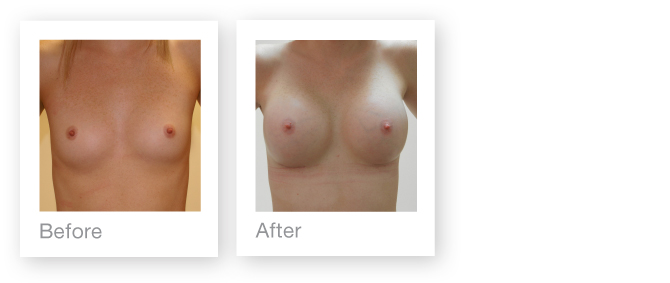 Breast augmentation surgery before & after by David Oliver - HD-Brixham