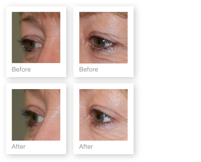 Blepharoplasty (Eyelid Surgery) result for David Oliver - cosmetic surgeon