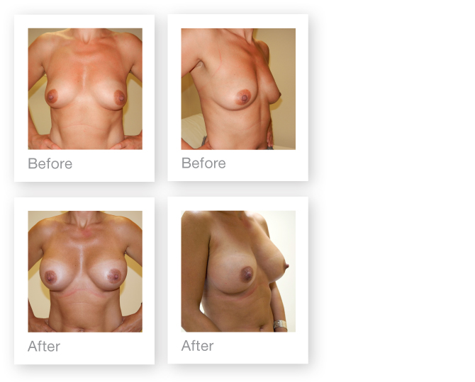 David Oliver Breast Augmentation Surgery September 2012 Before and After photo