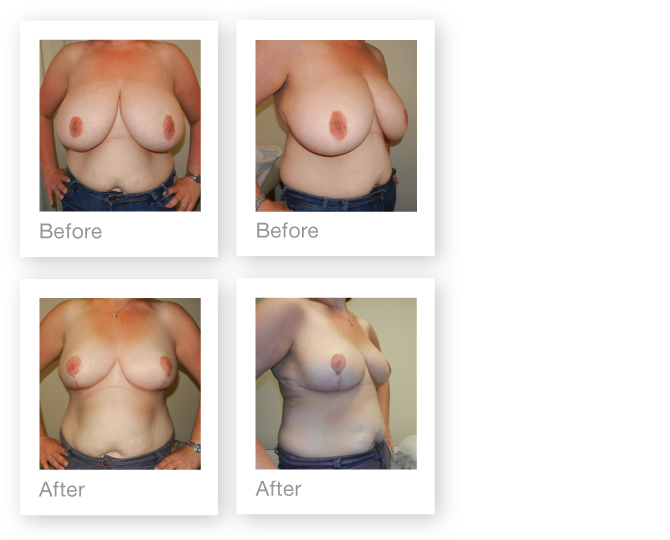 David Oliver Breast Reduction 2 September 2012 Before and After photo