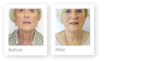 David Oliver Plastic Surgeon - Facelift before & after photos - September 2013