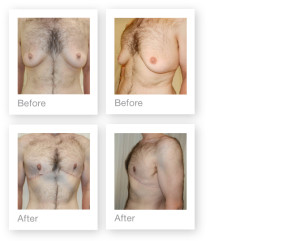 Before & After Gynaecomastia (Male Breast Reduction) by David Oliver Cosmetic Surgeon