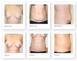 David Oliver Breast Augmentation surgery with mini Abdominoplasty result before and after May 2014