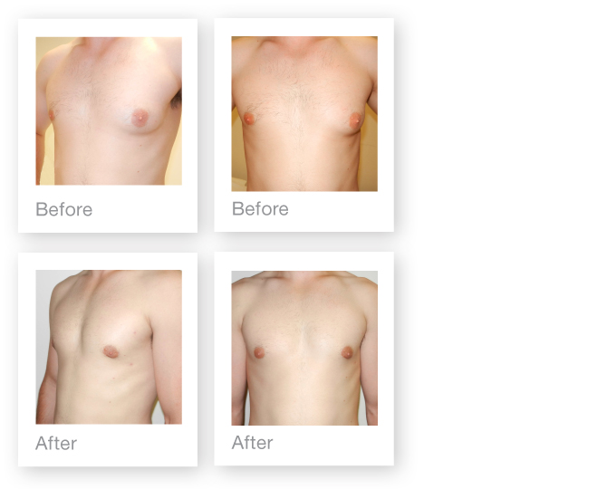 David Oliver Surgeon Gynaecomastia male Breast surgery Results before & after July 2014