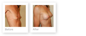 Before & After Breast Augmentation by David Oliver Cosmetic Surgeon covering Devon & Geurnsey