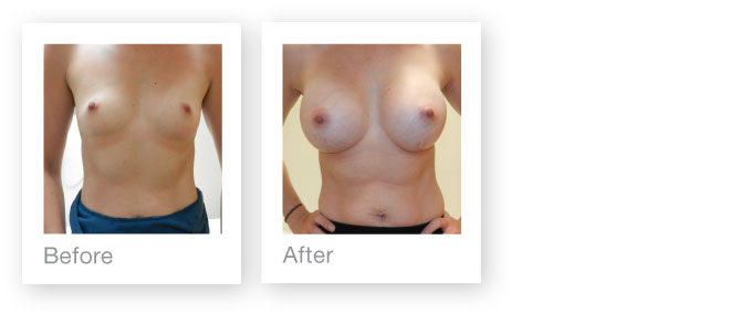 David Oliver breast augmentation before & after surgery peformed in Devon